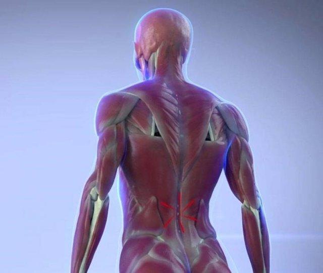 Músculos que se contraen en respuesta al dolor, ciática