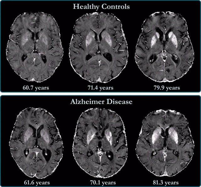 La acumulación de hierro en el cerebro está relacionada con el deterioro cognitivo en pacientes con Alzheimer.