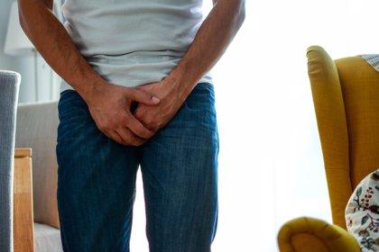 El priapismo o erección prolongada y sin deseo sexual, una emergencia urológica