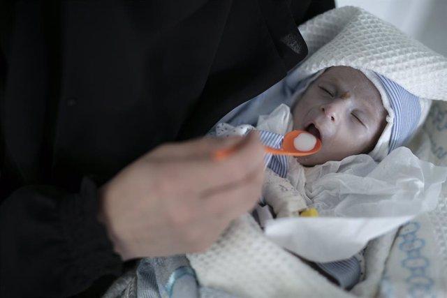 Un niño de cuatro meses desnutrido recibe alimento en un hospital en Saná, en Yemen.