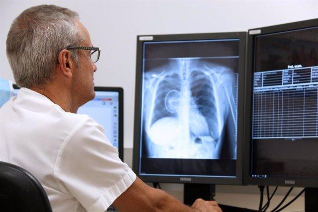 Investigadores españoles lanzan una prueba piloto paa identificar nódulos indicadores de cánceres pulmonares