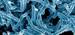 Micrografía electrónica de Mycobacterium tuberculosis, bacteria causante de la enfermedad