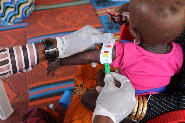 Una niña con desnutrición en Nigeria