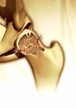 Breaking bone