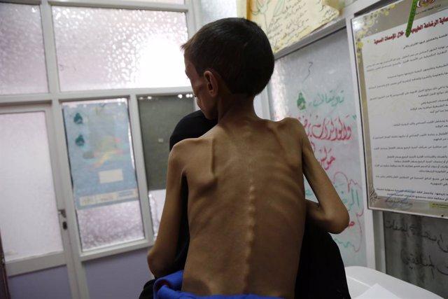 Niño desnutrido en un hospital de Saná, en Yemen