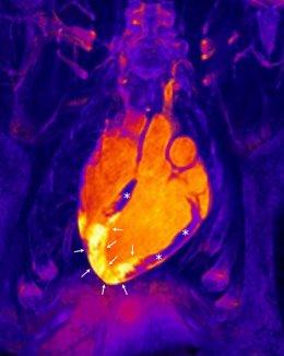 Corazón tras un infarto agudo de miocardio