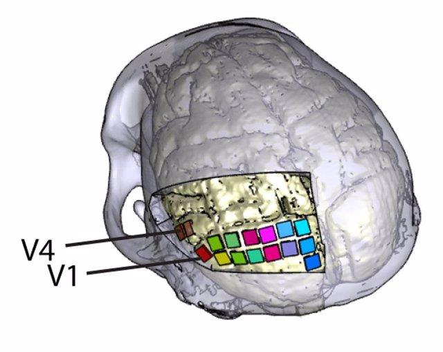 Restauran una forma rudimentaria de visión en ciegos mediante un implante cerebral