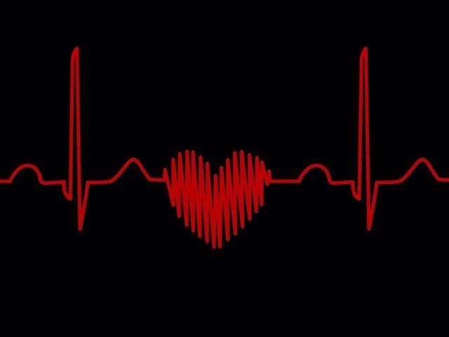 Corazón, paro cardiaco, electrocardiograma