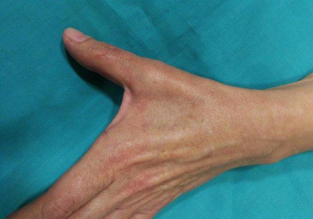 Mujer, 45 años, COVID-19 positivo, parálisis cubital completa en 3 meses.
