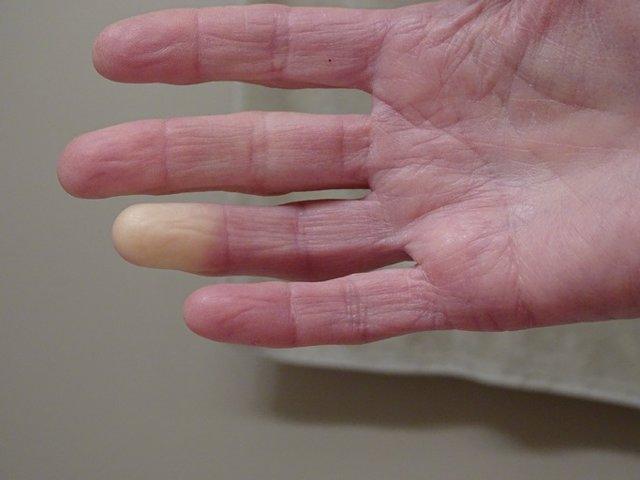 Esclerodermia, síndrome de  Raynaud.