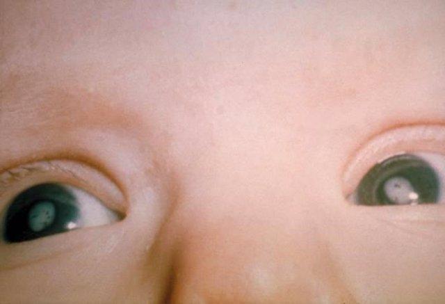 Bebé con cataratas por el síndrome de rubéola congénita