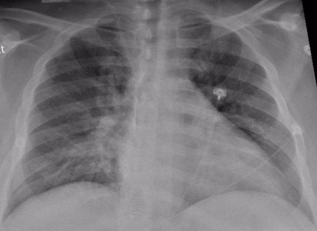 La radiografía de tórax de un paciente positivo de COVID-19 que muestra una neumonía en la parte inferior de los pulmones.