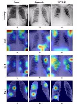 Desarrollan un análisis automático de radiografías simples de tórax para diagnosticar el Covid-19