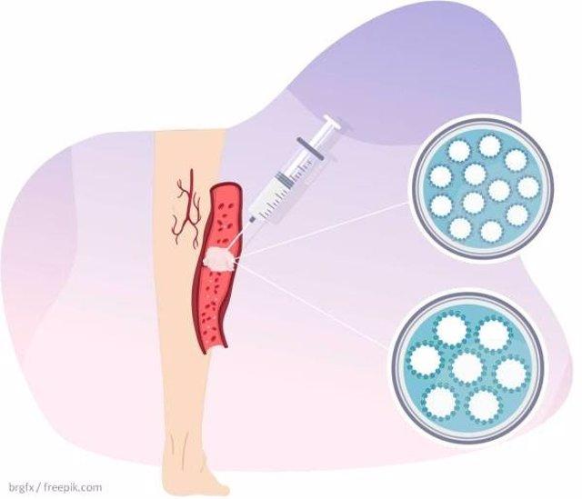 Esquema de una vena varicosa en la que se inyecta espuma esclerosante.