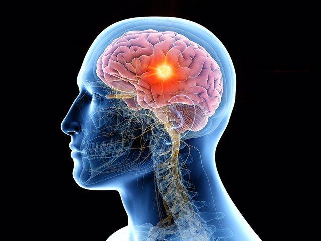 Detalle de un tumor cerebral