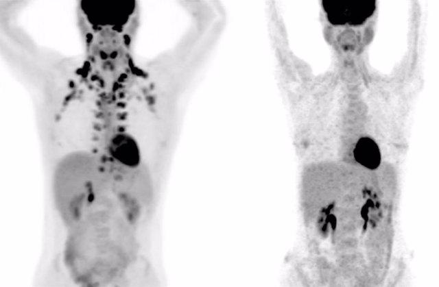 En estas tomografías, la persona de la izquierda tiene abundante grasa marrón alrededor del cuello y la columna cervical. La persona de la derecha no tiene grasa marrón detectable.