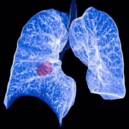 Descubren un posible tratamiento para una forma agresiva de cáncer de pulmón