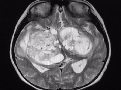 Identifican la exposición a un patógeno común transmitido por alimentos relacionado con un cáncer cerebral poco común