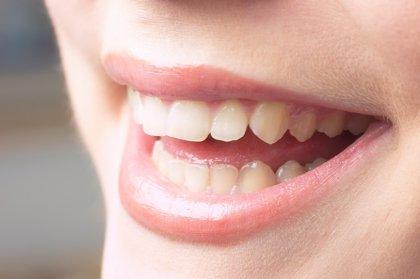 Expertos avanzan en un tratamiento definitivo para la eliminación de las placas oscuras del esmalte dental