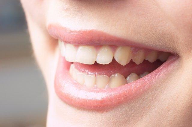 Boca, aliento, dientes, mujer