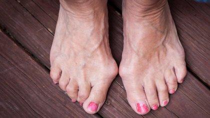 La cirugía percutánea contra juanetes permite caminar desde primer día y reduce dolor