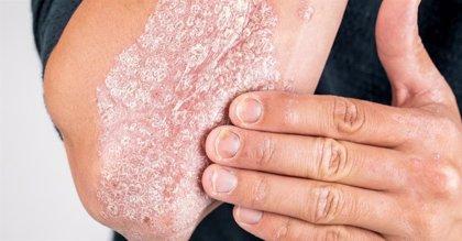 Los dermatólogos abogan por considerar la psoriasis como una enfermedad sistémica más que un problema de piel