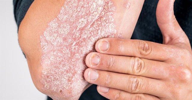 Psoriasis en brazo