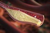 Foto: Colesterol elevado, cuáles son las razones