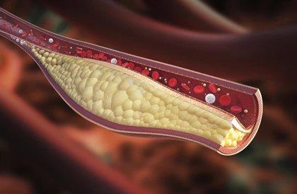 Colesterol elevado, cuáles son las razones
