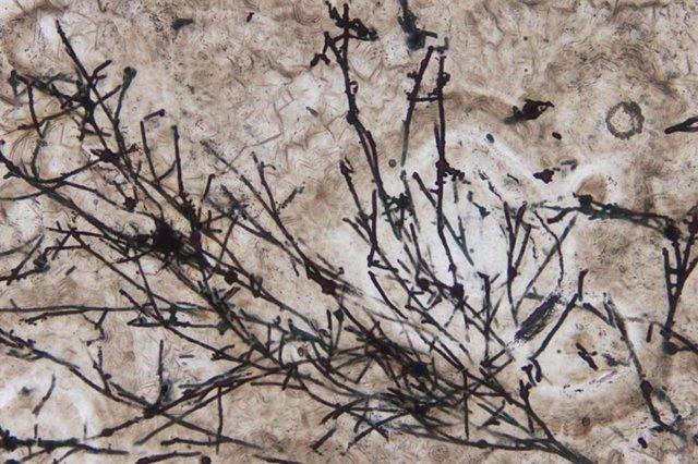 Imagen microscópica de microfósiles filamentosos parecidos a hongos