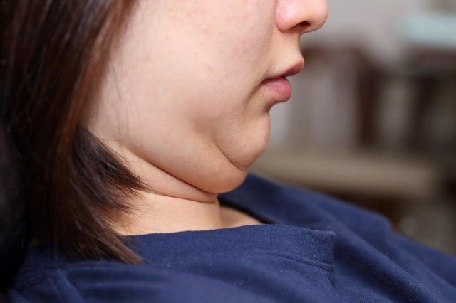 Papada, obesidad, sobrepeso