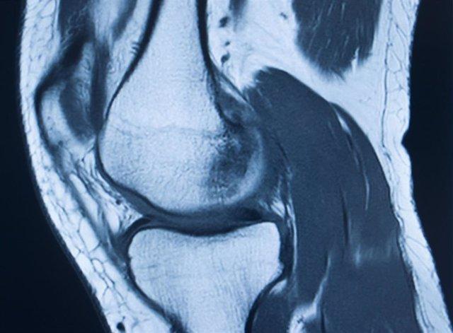 Imagen médica de articulación de rodilla.