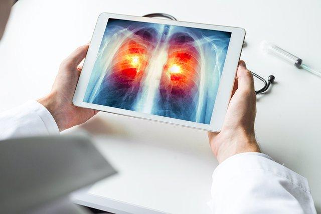 Radiografía digital acerca de un cáncer de pulmón