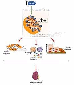 Mejorar la potencia energética de las células tubulares puede proteger al riñón de la fibrosis