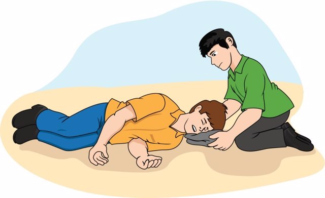 Cuando una persona sufre una ataque de epilepsia y está inconsciente, lo mejor es tumbarla sobre el suelo y sujetar su cabeza.