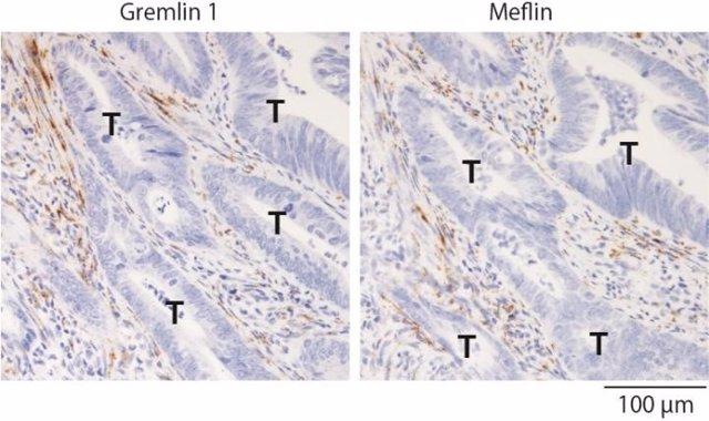 Encuentran posibles dianas terapéuticas para inhibir la progresión del cáncer colorrectal