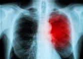 Foto: Los casos de insuficiencia cardíaca se disparan a nivel mundial