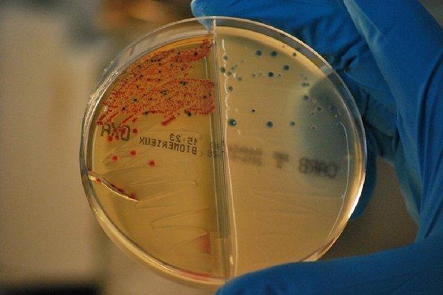 Bacterias resistentes a los antibióticos aisladas en el IRYCIS. /