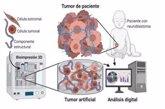 Foto: ¿Se puede utilizar la impresión 3D para comprender mejor algunos tumores?