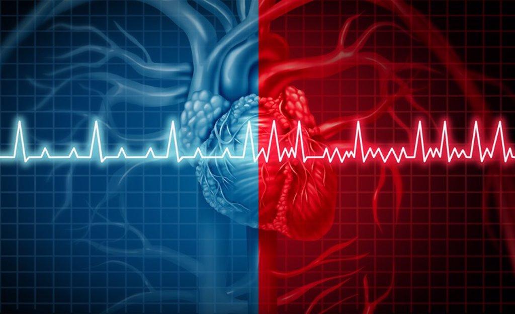 La hipertensión arterial causa fibrilación auricular