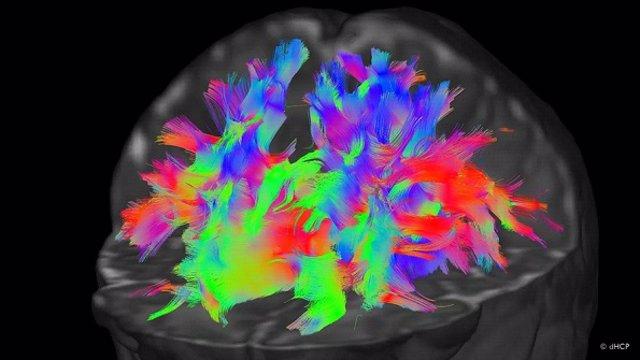 Tractografía o mapa de conexiones representando la arquitectura cerebral de un neonato