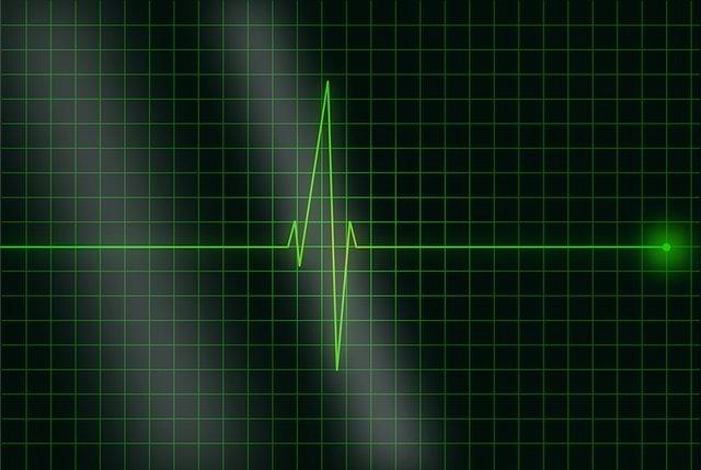 Frecuencia cardiaca.
