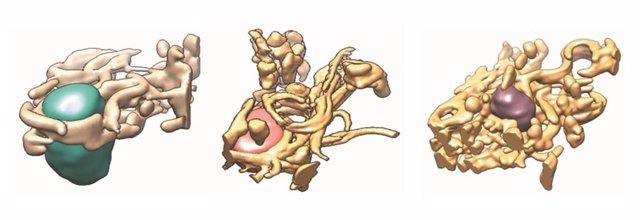Reconstrucciones tridimensionales de regiones citoplasmáticas de células control (izquierda) y dos modelos celulares de infección por el virus de la hepatitis (centro y derecha).