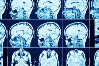 Foto: Descubren un nuevo objetivo de inmunoterapia para tumores cerebrales malignos