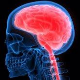Foto: Cada año se diagnostican en España unos 1.200 nuevos casos de encefalitis