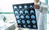 Foto: Un diagnóstico tardío de las encefalitis desemboca en secuelas neurológicas graves