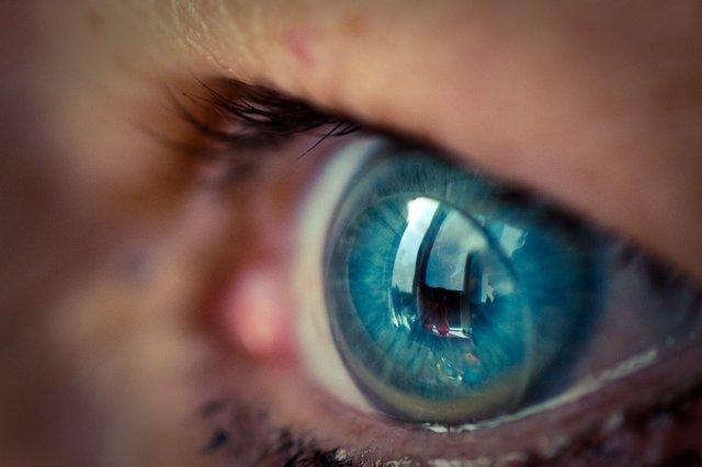 Archivo - Lentillas, ojo