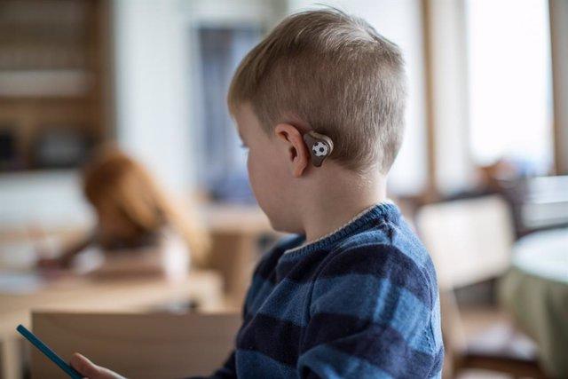 Archivo - Implante coclear en niños.