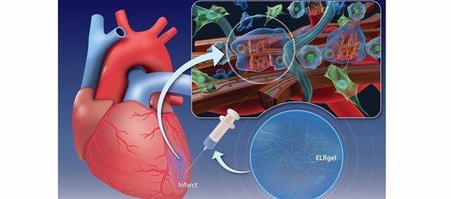La inyección de un hidrogel puede promover la curación del músculo cardíaco después de un infarto.