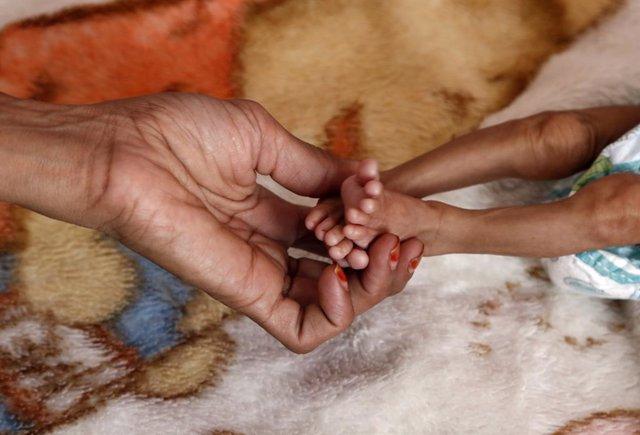 Archivo - Niño con desnutricion en un hospital de Saná, Yemen